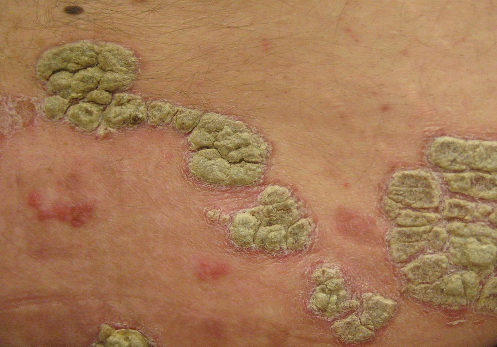 Austrian researchers successfully eliminate psoriasis symptoms